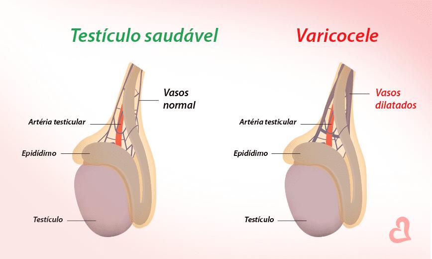 Prostatitis és varicocel)